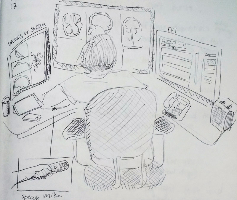 a drawing of a radiologist reading brain scans.